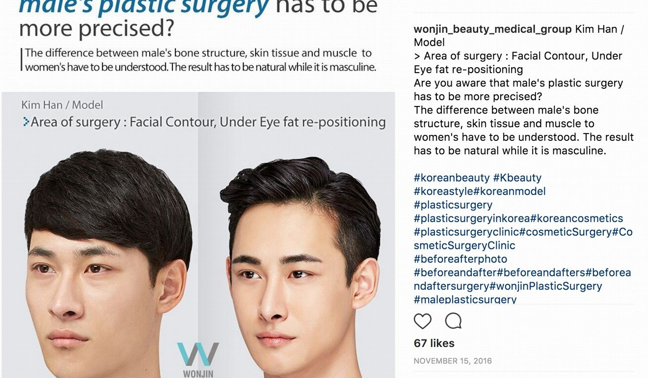 South Korean men having plastic surgery to get 'pretty boy' looks