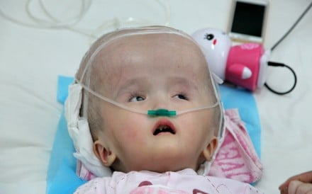 Three-year-old Hanhan suffered from hydrocephalus, causing her brain and skull to swell. Doctors managed to successfully transplant her skull with a 3d-printed replacement. Photo: Reuters