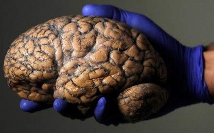 Belgian researcher Jeroen Schuermans holds a human brain, part of a collection of more than 3,000 brains at the psychiatric hospital in Duffel, Belgium. Photo: Reuters