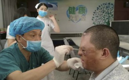 Medical staff painstakingly extended the area of Zhao Xuecheng's face covered by undamaged skins after a series of operations. Photo: News.sina.com.cn