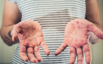 HFMD is clinically characterised by rashes or lesions occurring on the palms, soles and other parts of the body, such as the buttocks and thighs. Photo: Shutterstock