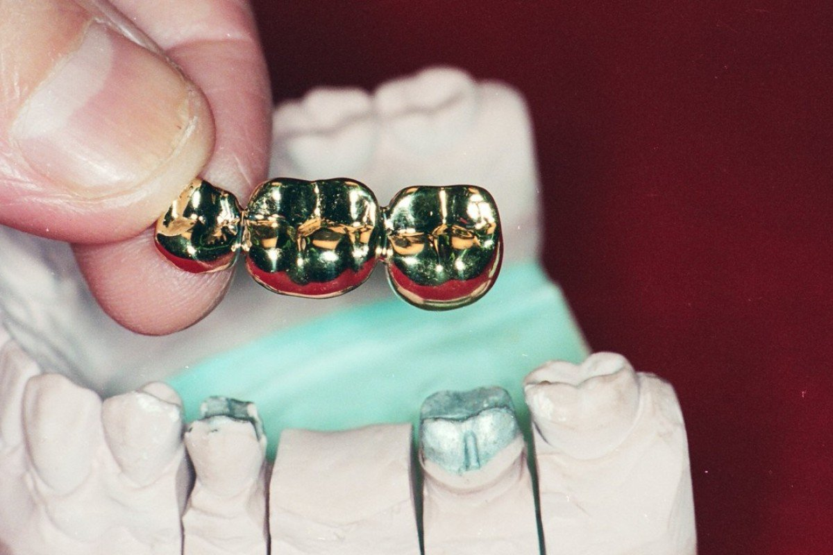 Gold caps for teeth were once popular, especially among amahs in Hong Kong. Picture: SCMP