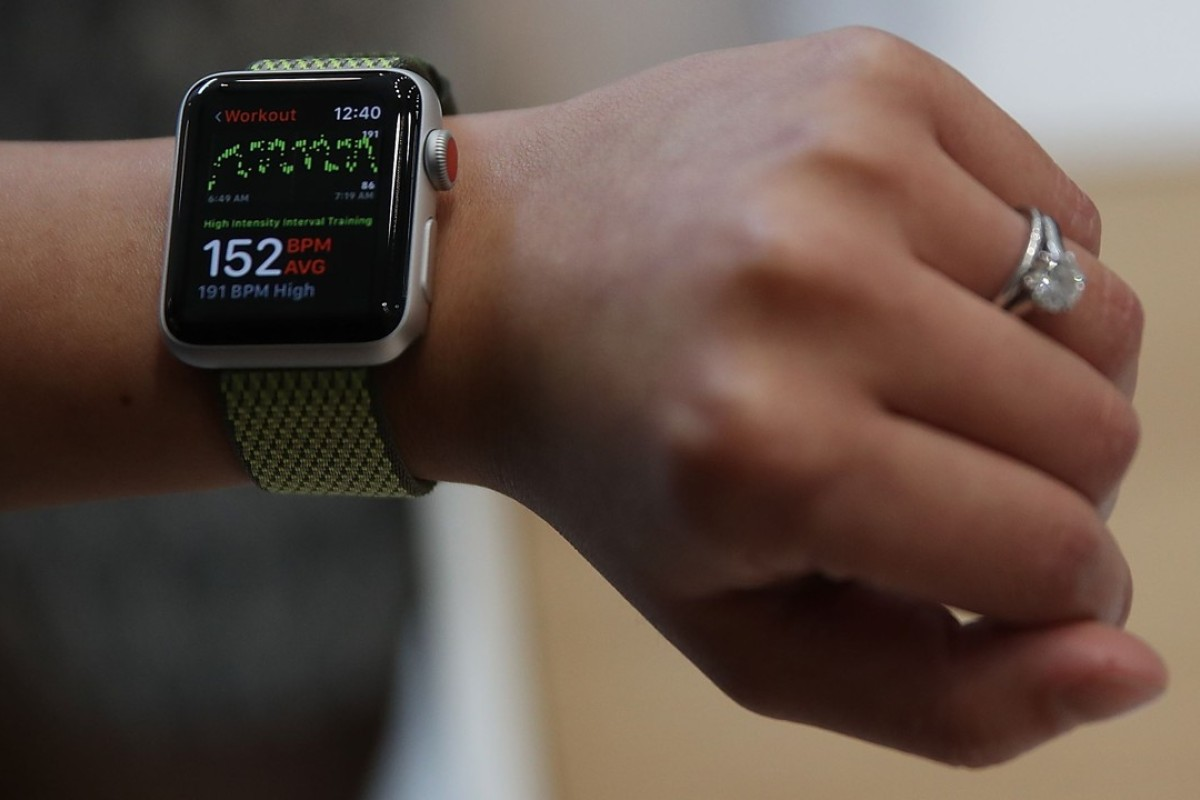 The new Apple Watch Series 3 displayed at an Apple special event announcing the new iPhone 8, iPhone X and the Apple Watch Series 3. iPhoto: AFP