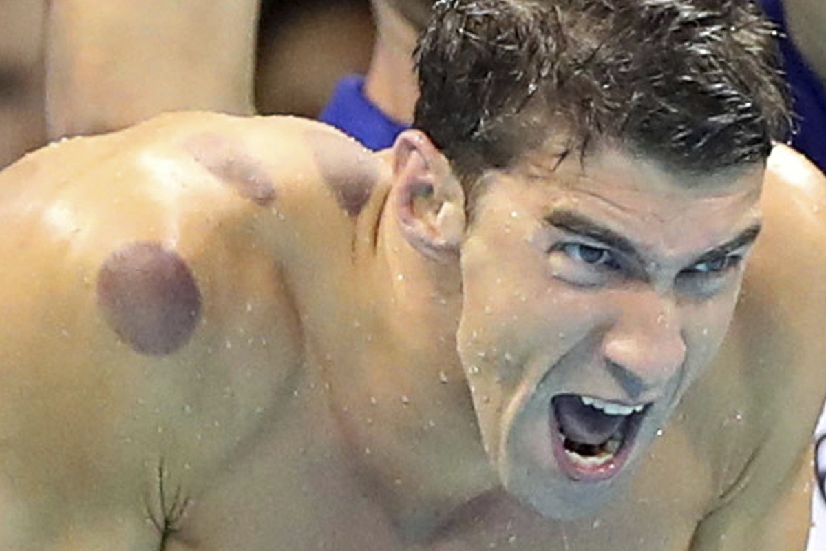 Michael Phelps sporting the cupping marks from a treatment session. Photo: AP